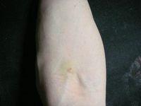 内出血している採血の痕